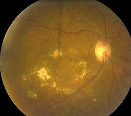 macular edema DME circinate retina bay area