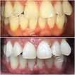 Silhouette Beauty Teeth Whitening Actual Results