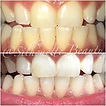 Silhouette Beauty Teeth Whitening Results