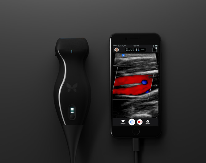 Low-end disruption coming to the Ultrasound market