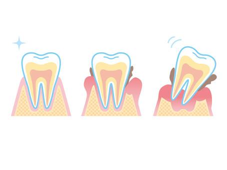 歯周病と認知症