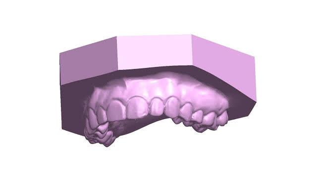 dental teeth jaw bone survey 3d laser scan faro bms design ltd