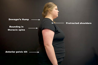 back-pain-and-posture-case-study.jpeg
