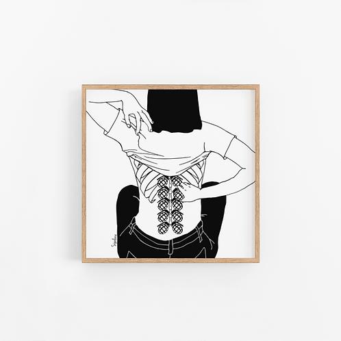 הדפס איור - השדרה נפיצה