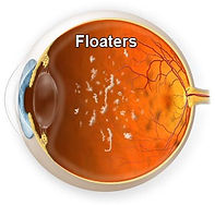 Persistent Vitreous Floaters