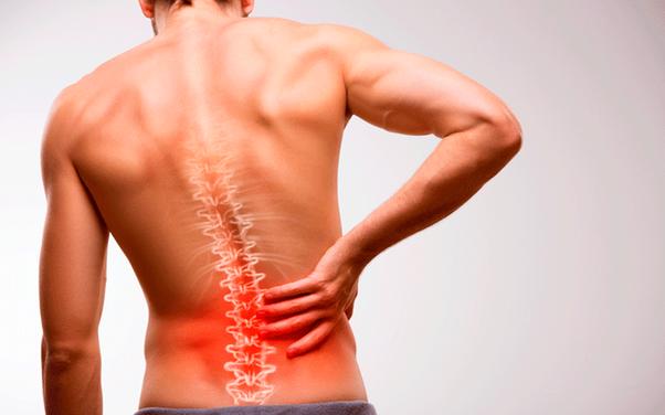 Escoliose: o que é, sintomas, tipos e tratamento