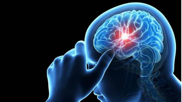 Aneurisma cerebral: o socorro deve ser imediato