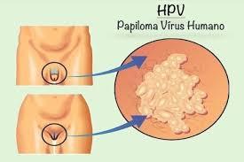 O papilomavírus humano (HPV) é a infecção sexualmente transmissível (DST) mais comum