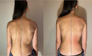 Formation fascia thérapie correction sco