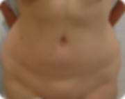 Tummy Tuck Miami