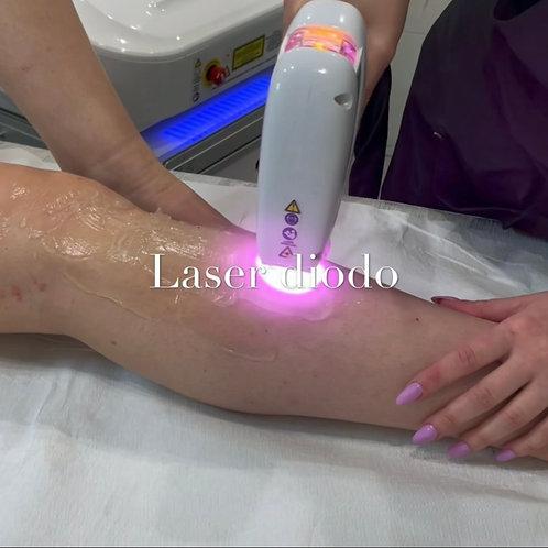 Epilazione gambe con laser Diodo