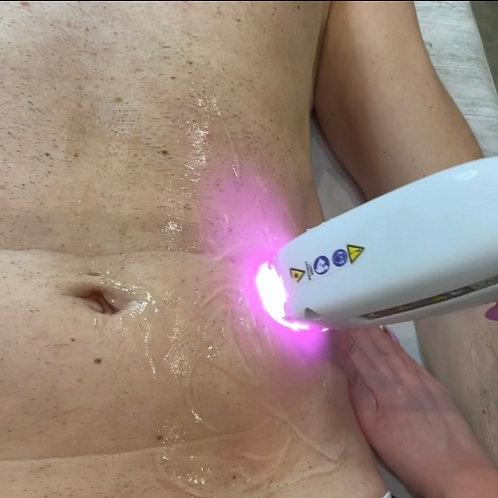 Epilazione addome con laser Diodo
