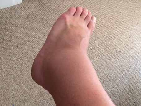 Working with Run injuries