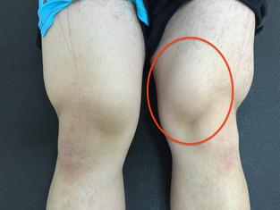 膝の特集!!筋肉との関係