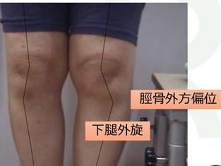 膝の特集!!膝の形態的特徴