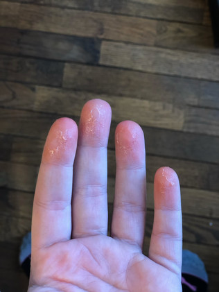 1st Degree Burn