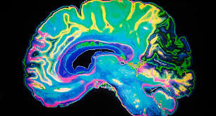 What Exactly Are Dementia Risk Factors?