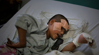 Nine-year-old Eimal, who has lost his right eye and several fingers on his hands in a landmine blast, speak to a relative on a mobile phone while lying in his bed at Emergency Surgical Center for Civilian War Victims in Kabul, Afghanistan, Thursday, Dec. 12, 2019.