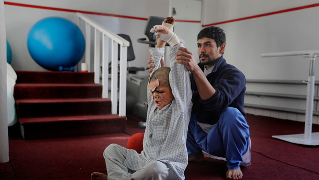 An Afghan physiotherapist helps nine-year-old Eimal, who has lost his right eye and several fingers on his hands in a landmine blast, stretch at Emergency Surgical Center for Civilian War Victims in Kabul, Afghanistan, Thursday, Dec. 5, 2019.