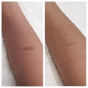 SSR Laser Skin Rejuventation