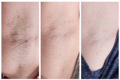 SHR Laser Hair Removal Results