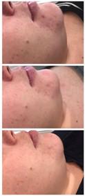 SHR Laser Skin Rejuvenation