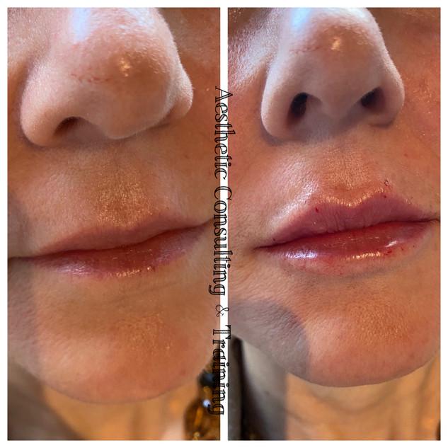 lips b&a.jpg