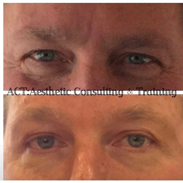 Amazing what a little Botox and MicoTox®