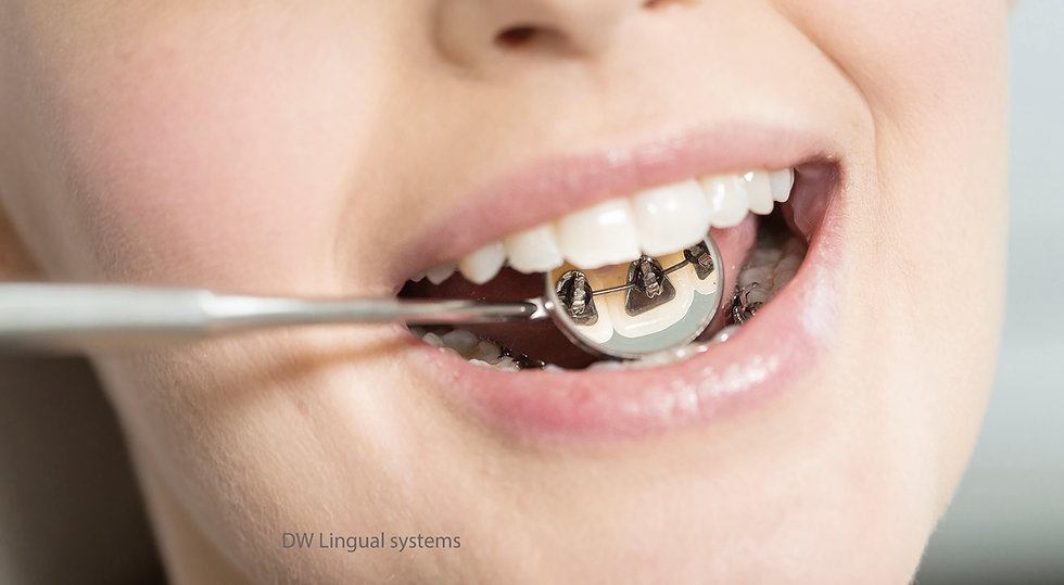 orthodontie annecy