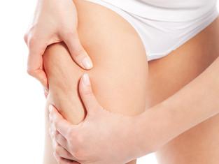 O que fazer para reduzir a Celulite?