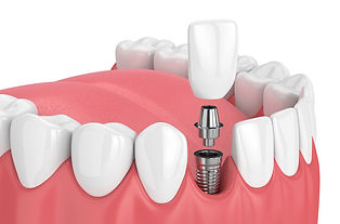 IMG-dental-implant-GettyImages-931130140