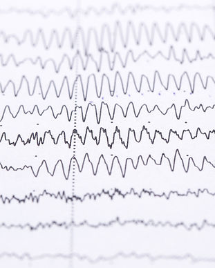 cardiogram-on-a-sheet-of-paper-close-up-texture-of-pulsed-waves.jpg