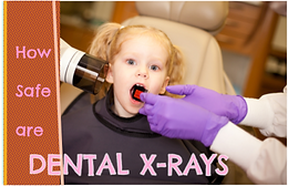 When should my Burlington and Milton pediatric dentist take my child's radiographs?