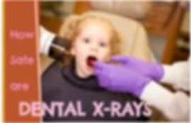 Burlington Oakville Ontario Dental Xrays Safety Kids Children Pediatrics radiographs