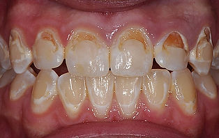 Dentist for kids in Milton use fluoride to stop cavities