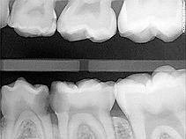 Milton Paediatric Dentist say Dental Xrays pediatrics kids dentist children