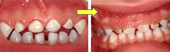 How do Milton Pediatric Dentist prevent cavities in children?