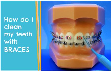Milton Pediatric Dentist brushes teeth