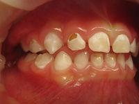 Oakville children's dentist treat children under general anesthesia.