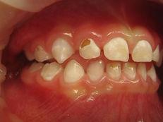 Oakville children's dentistry treats children under general anesthesia