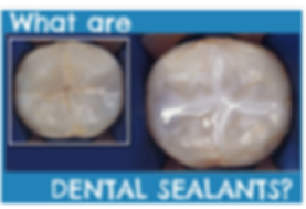 Burlington Oakville Ontario dentist sealants kids children pediatrics