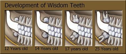 Kids dentist in milton talk about Wisdom teeth