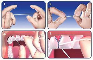 Milton Pediatric Dentist teaches parents how to floss child's teeth