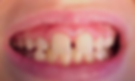 Oakville children's dentist lose teeth at age 6