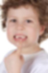 Milton kids dentistry have cavities