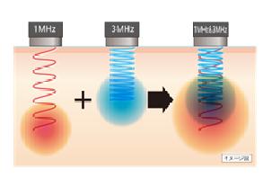 超音波イメージ図.png
