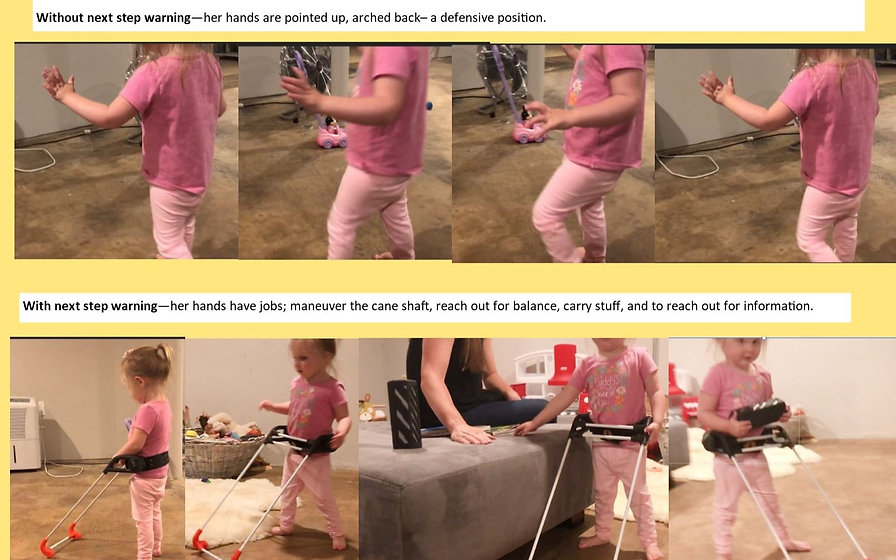 Four pictures showing 3-year-old girl who is blind walkig, her hands are held above her waist, taught fingers, arched wrists.