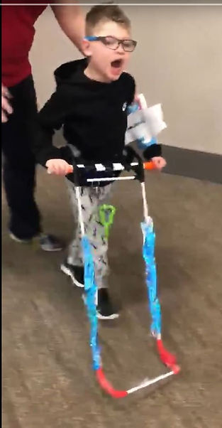 five year old on the Autism spectrum and visually impaired seen walking wearing belt cane that has been altered with additional bar to hold and blue colored tape on the cane shafts