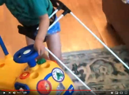 Children with MVI/B who wear belt canes achieve gross motor milestones 18-months and higher