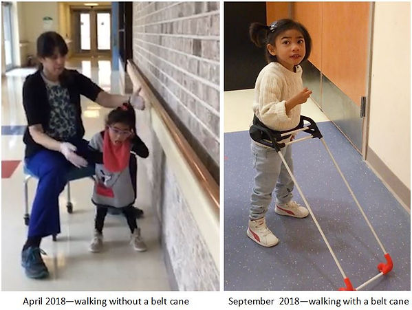 Three-year-old girl with CVI walks without belt cane hands up by ears, wide gait, PT hands ready to catch her title reads April 2018--walking without a belt cane. next to same girl wearing her belt cane, walking independently, hands relaxed, smiling; title september 2018--walking with a belt cane.before after.